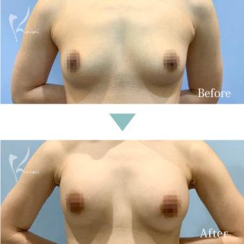 モティバエルゴノミクスを用いた豊胸術の正面からの症例写真