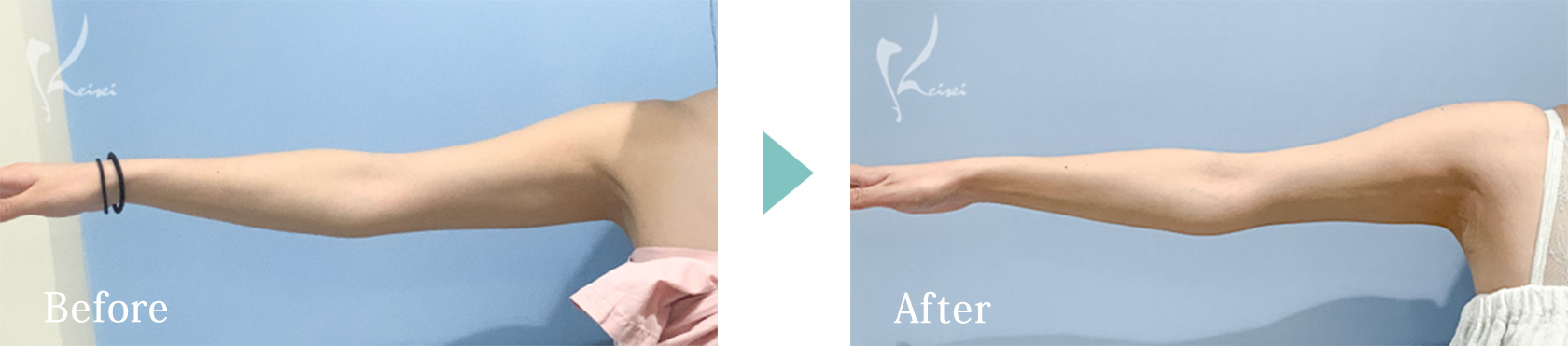 上腕の脂肪吸引の施術前後の比較写真 その1