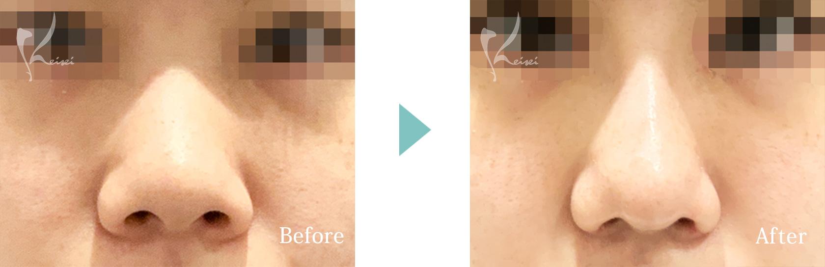 鼻の施術の正面からの症例画像