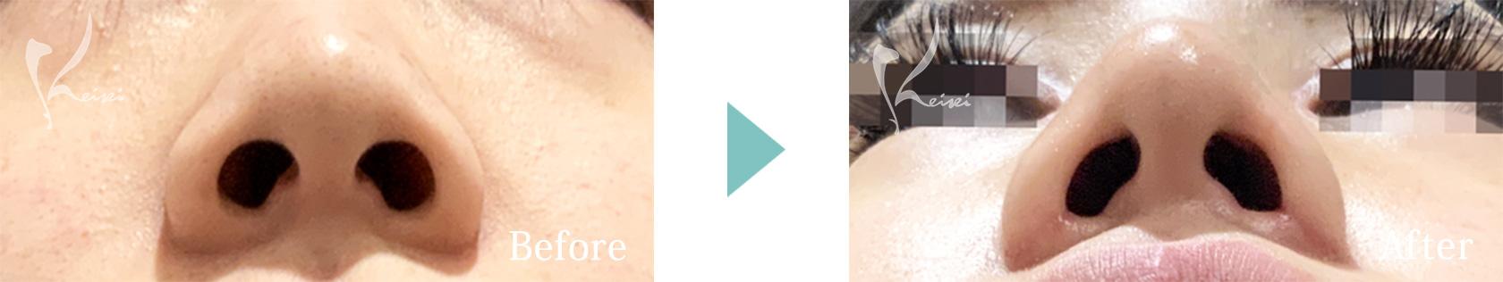 鼻の施術の下からの症例画像