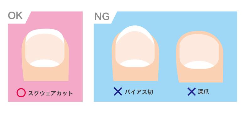 陥入爪を予防するための爪切り