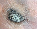 皮膚腫瘍(できもの)