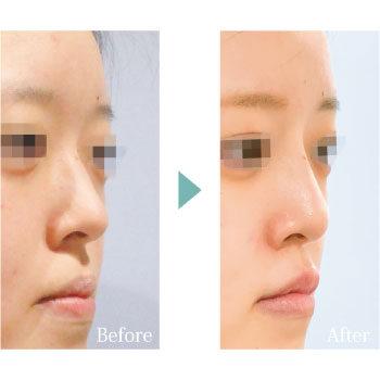 田川医師ブログ 鼻整形のよくある質問