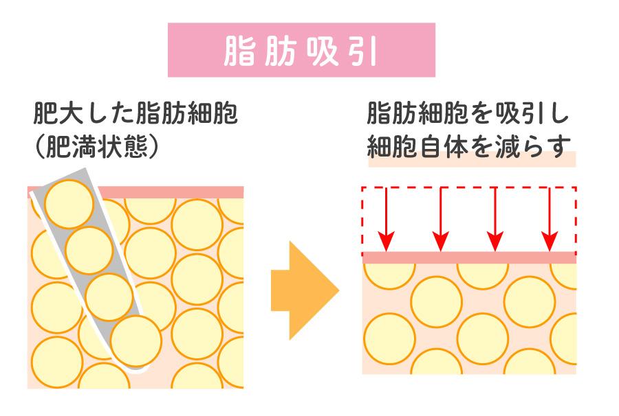 脂肪吸引による脂肪細胞の変化と仕組み
