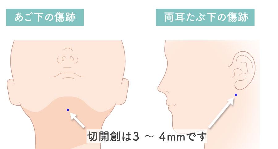 顔の脂肪吸引の傷跡(切開創)の箇所