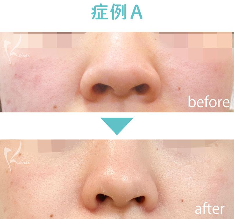 小鼻縮小の症例