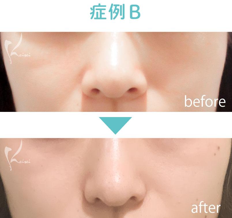 小鼻縮小 鼻翼縮小の症例