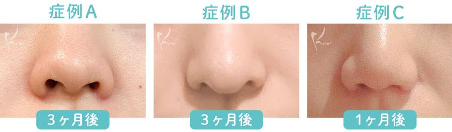 小鼻縮小 鼻翼縮小の正面から見た症例を比較