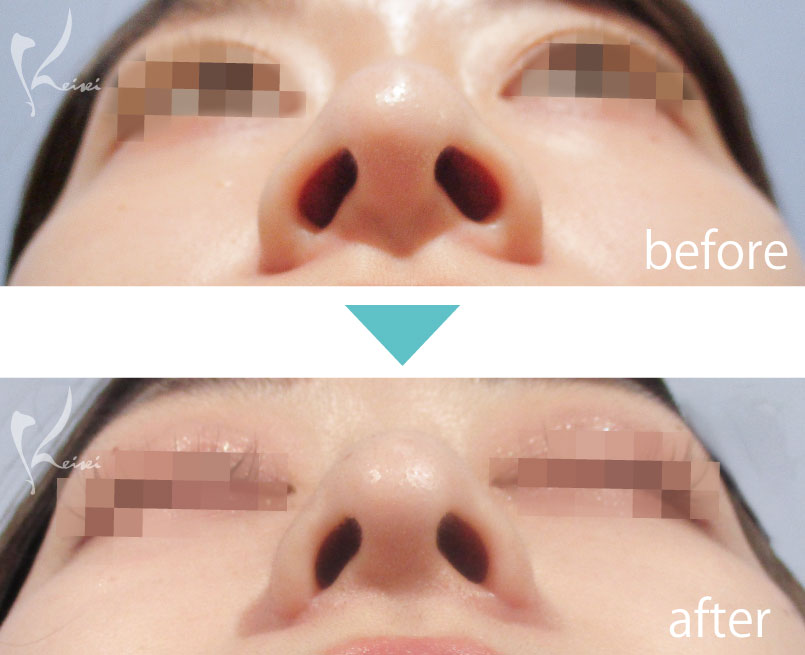 小鼻縮小 鼻翼縮小の下から見た症例