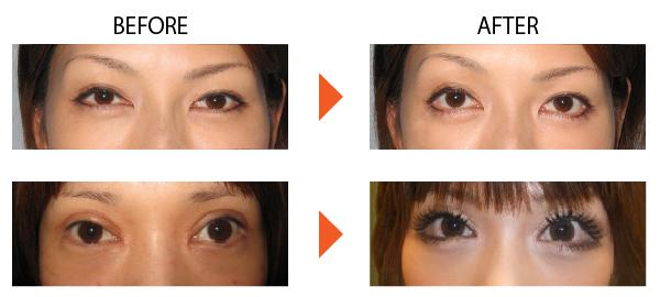 下眼瞼開大 たれ目 垂れ目 目を大きくする 症例