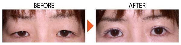 上眼瞼たるみ取り 上まぶた 目元たるみ 大阪 症例