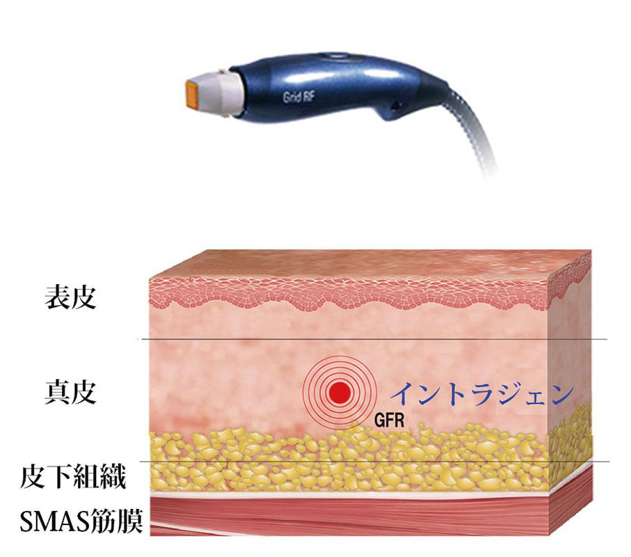 ウルトラセル hifu リフトアップ エイジングケア アンチエイジング 大阪 たるみ治療