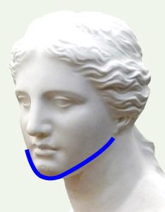 ヴィーナス(下顎輪郭全周骨切り)