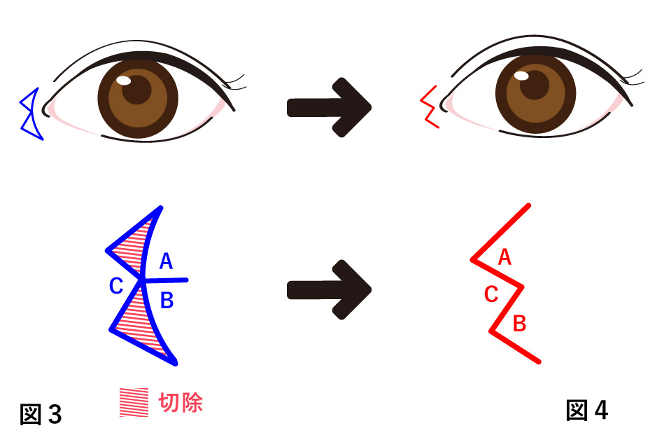 目頭切開 内田法(W形成)の説明図