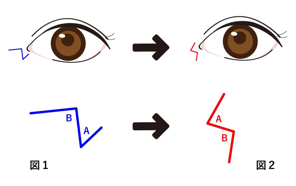 目頭切開 Z形成の説明図